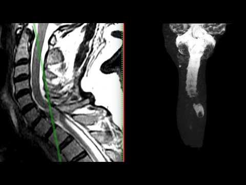 Fisioterapia en dorsopatías columna cervical