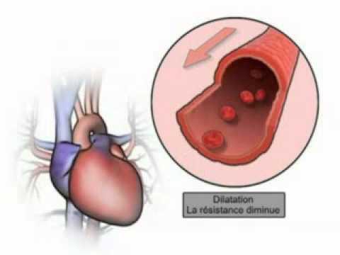 Diroton ses effets sur le cœur