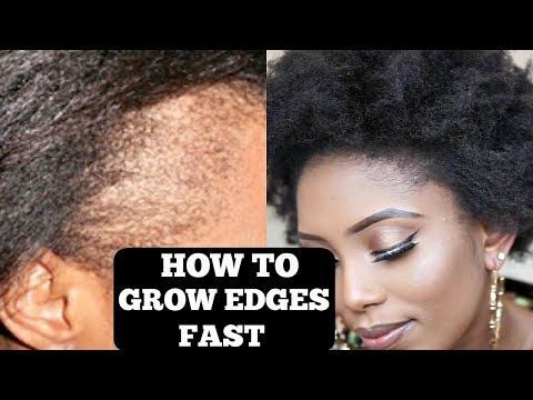 HOW TO GROW YOUR THIN/BALD EDGES IN 3 DAYS (GUARANTEED)