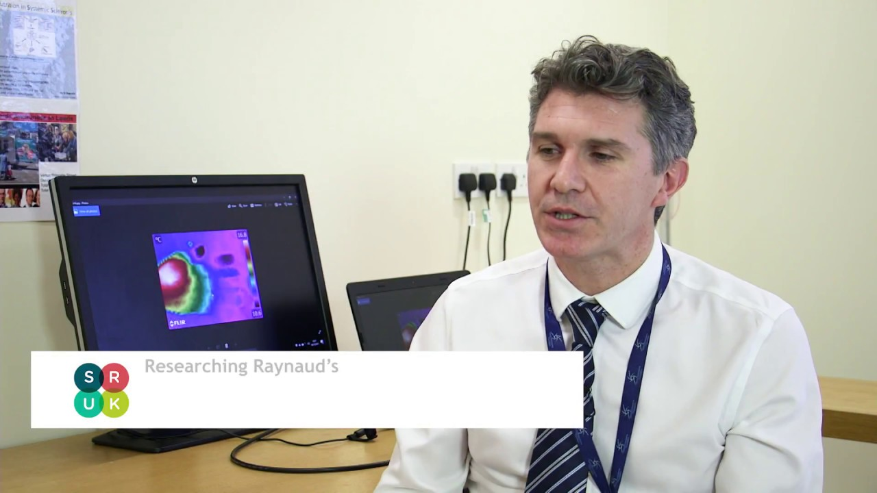 Raynaud's research with Dr Francesco Del Galdo