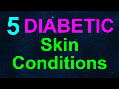 Diabetul zaharat simtomy