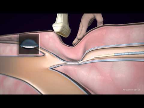 Die Tinktur aus der Akazie bei der Thrombophlebitis
