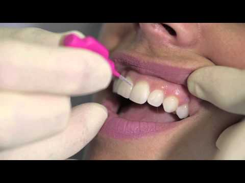 How to use an interdental brush - AJ Hedger