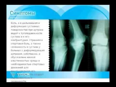 Ноющие боли в боку отдающие в спину и ногу