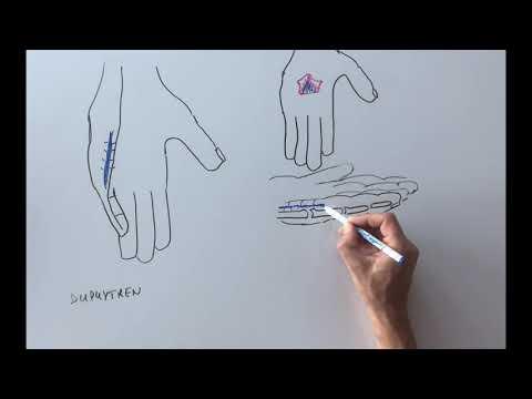 Artroza tratamentului de exacerbare a genunchiului
