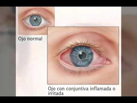 Cum să începeți să restabiliți vederea