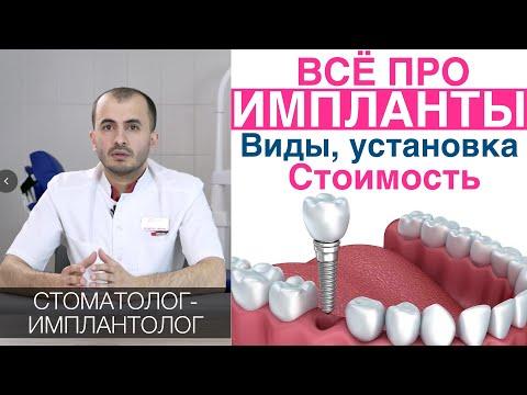 Зубные импланты - как выбирать, цена, установка имплантов зубов, гарантия. Имплантация зубов.