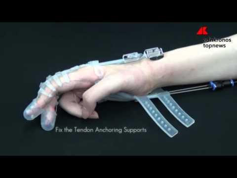 Artrite, articolazione temporomandibolare
