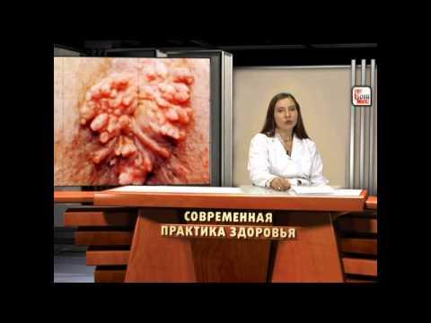 Гельминты и опухоли