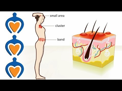 Video Shingles - The causes, symptoms, treatment and prevention