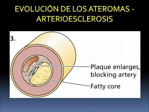 VSD del tipo hipertónico con osteocondrosis cervical