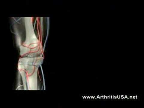 Knee pain due to knock knees by dr Farshchian
