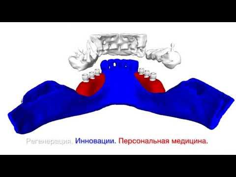 Индивидуальные костные блоки RBB (Россия) по 3Д-Компьютерной томографии