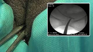 Fluoroscopic technique for Stent Removal in Female