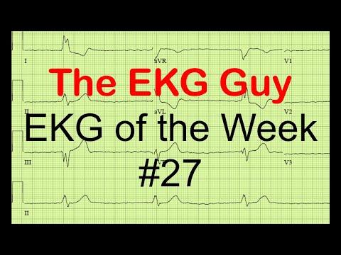 EKG of the Week #27
