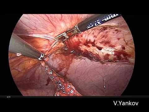 Laparoscopic Umbilical Hernia Repair