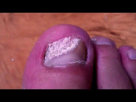 Die Behandlung gribka der Nägel soforoj