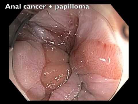 papilloma colon)