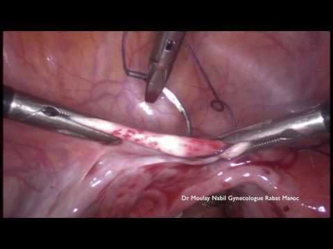 Laparoscopy for Symptomatic Uterine Retroversion