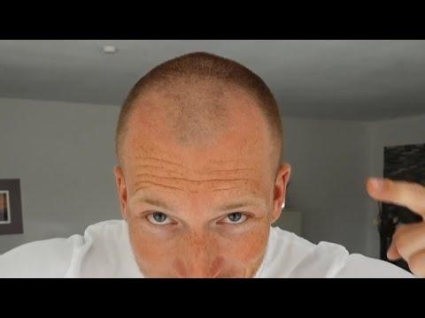 3mm haare
