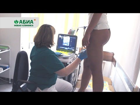 Как проводится дуплексное сканирование вен нижних конечностей?