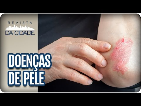 Teste de sangue de neurodermatitis