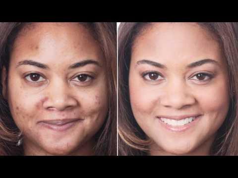 Perché ci sono posti di pigmentary su una faccia e per liberarsi da loro