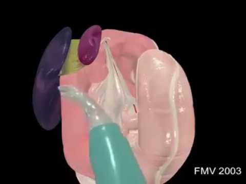Prostatitis half trihopol