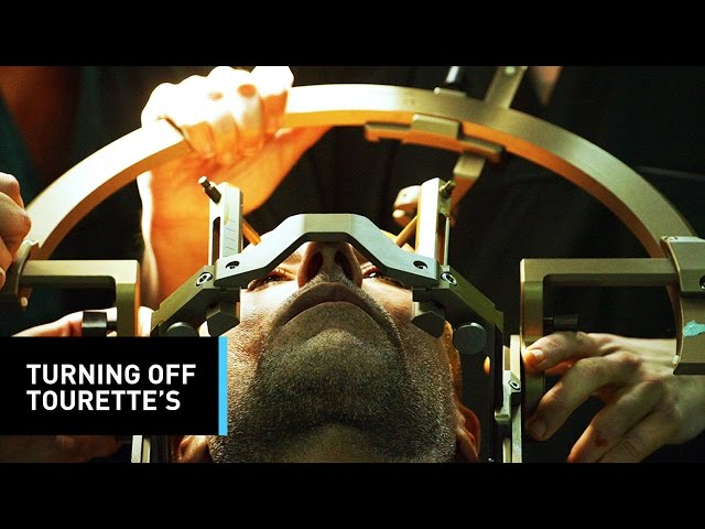 Армия США приступила к испытаниям мозговых имплантов, способных изменять настроение