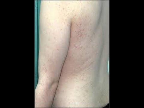 Psoriasi di clinica della pelle
