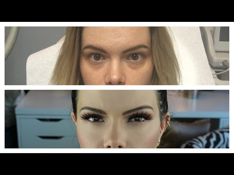 Under Eye Filler & Botox | Experience With Before & After Pictures