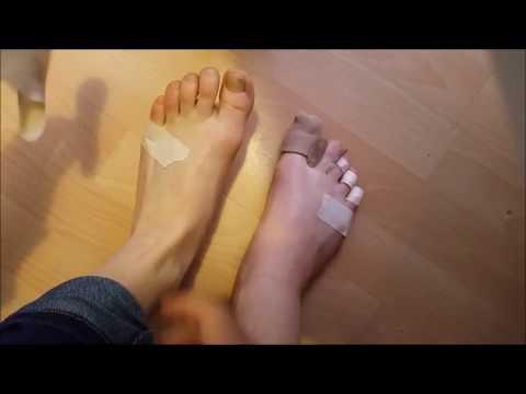 Der Zapfen auf dem Daumen des Beines Videos