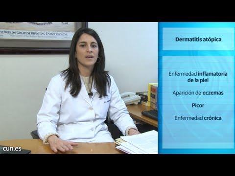 La aplicación del azufre a la psoriasis