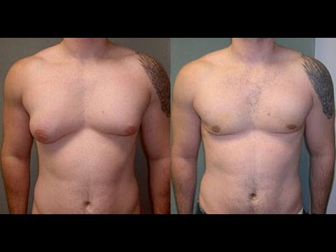 Les hormones augmentant la poitrine