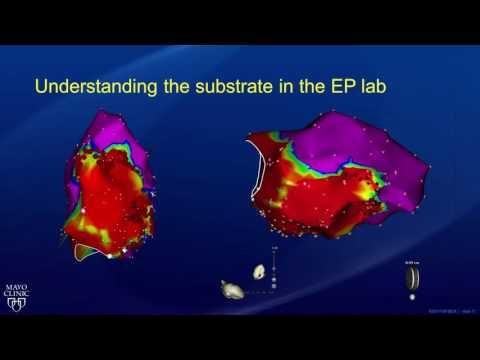 Hipertenzije i kruške