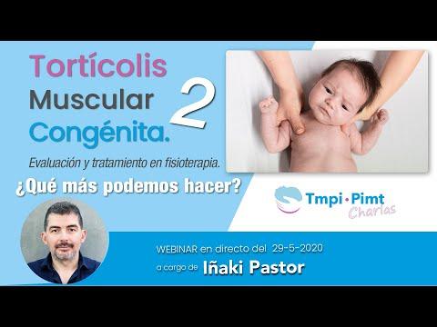 Webinar Torticolis Muscular Congénita - 2° Parte - Iñaki Pastor