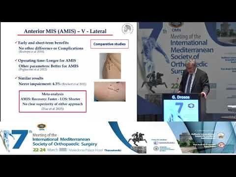 Drosos G - MIS versus standard procedures. The current evidence