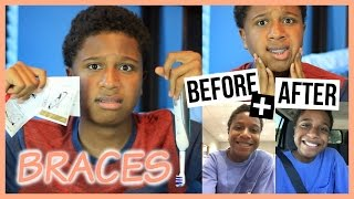 My Braces Experience + Before & After!