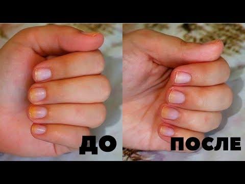 Уберёт ли СОДА желтый пигмент на ногтях /  как отбелить ногти