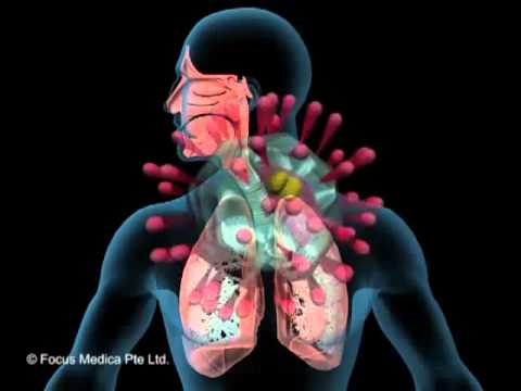 Video Upper Respiratory Tract Infections