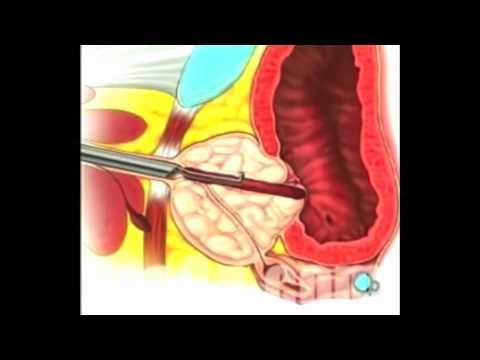 Préparations remèdes populaires prostatite