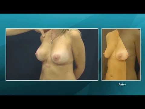 El aumento de los pechos vpravi