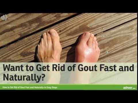 Video How to Get Rid of Gout Fast and Naturally in Easy Steps