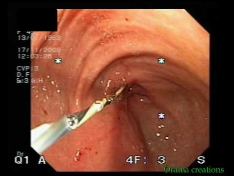 Malignant Stenosis And Stent Implantation After Billroth I