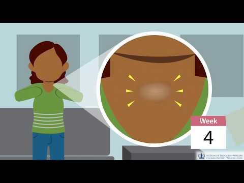 Anemia weight gain