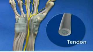 Carpal Tunnel Surgery