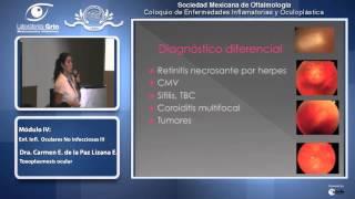 Toxoplasmosis ocular - Dra. Carmen Lizana Enriquez - 19 de Julio del 2013