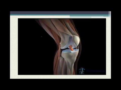 Успокаивающие средства при остеохондрозе