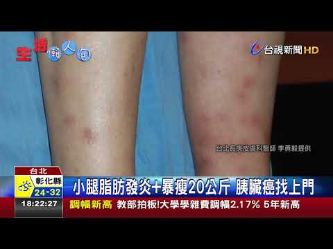腿上紅疹誤認皮膚病  中年男胰臟癌末期