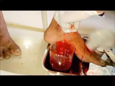 Vörös foltok a kezeken és viszketés kezelése